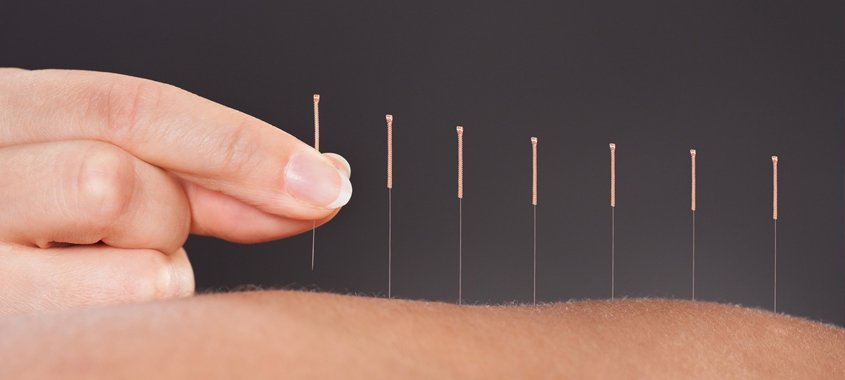 Why try acupuncture?