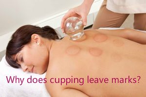 Why does cupping leave marks?