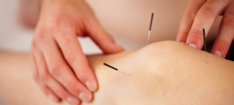 Acupuncture: not just for pain!