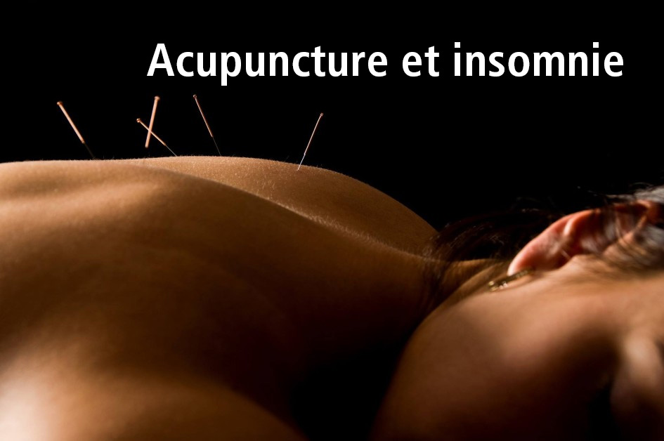 Acupuncture-et-insomnie-from-lierre-blog