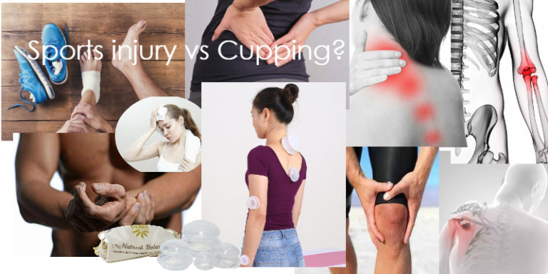 Does cupping really work for sports injuries?