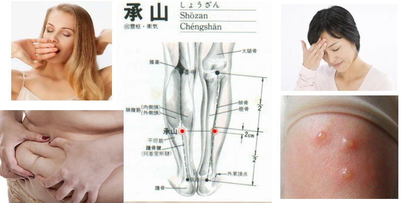 lierre-silicone-cupping-massage-cupping-accessories-acupuncture-needles-cheng-shan-acupoint