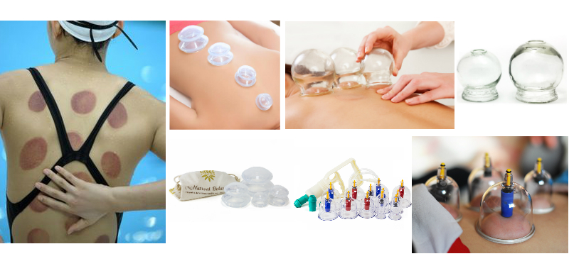 lierre-silicone-cupping-sets-glass-cupping-plastic-cupping-lierre-medical-com