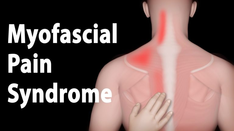 Everything You Need to Know about Myofascial Pain