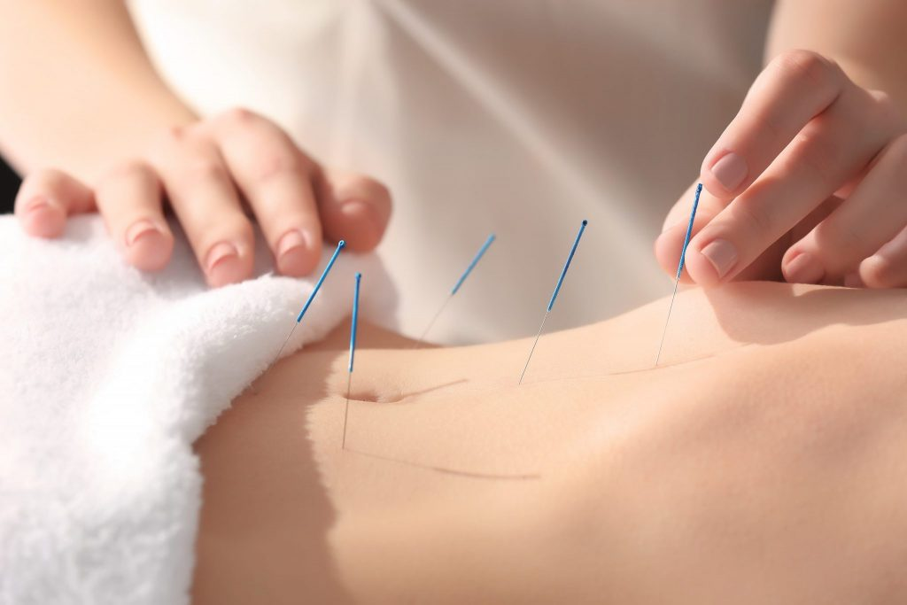 Fibromyalgia relief from acupuncture - Lierre.ca Canada