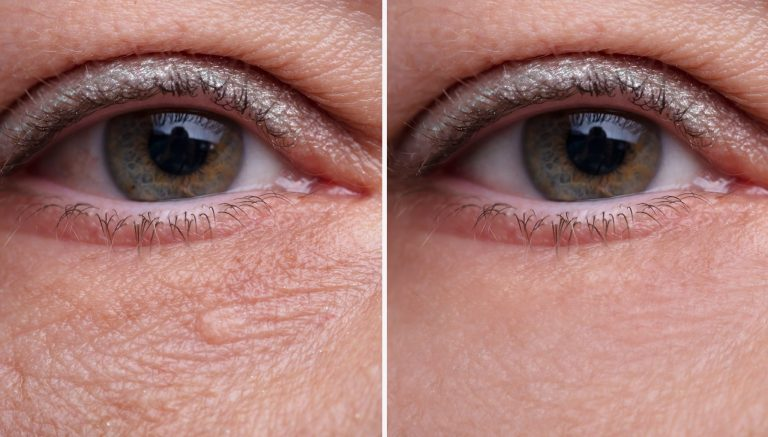 How to Treat Under Eye Bags and Wrinkles