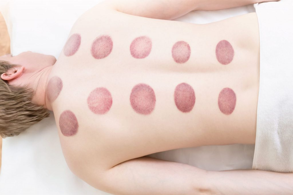 What does cupping marks mean?