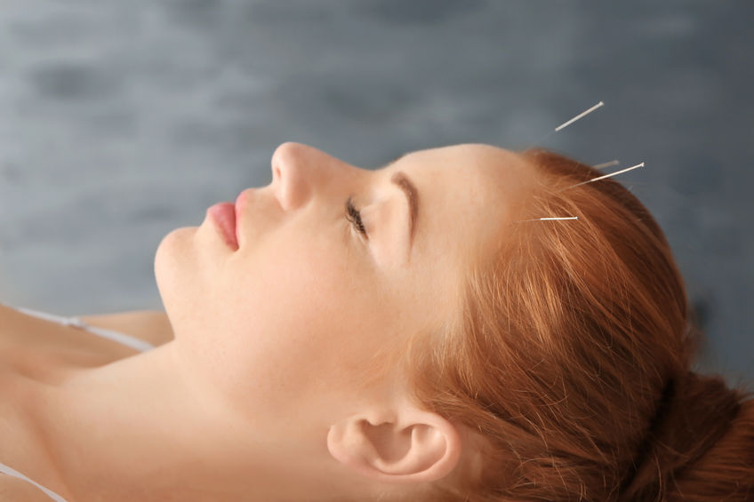 Acupuncture for headaches from Lierre.ca Canada