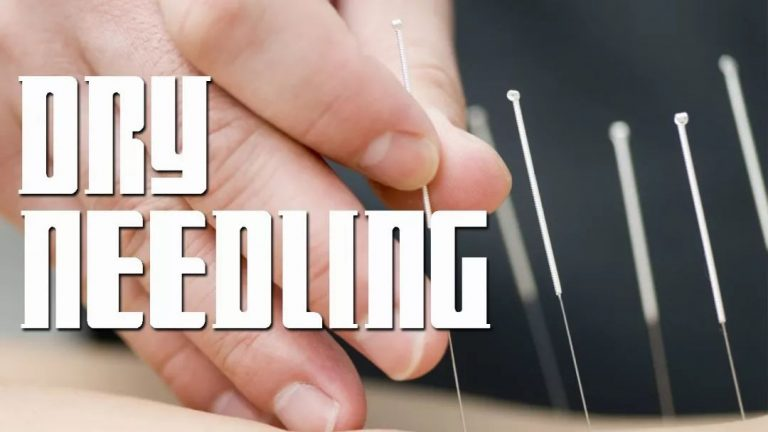 What Does Dry Needling Mean and How Does it Differ From Acupuncture