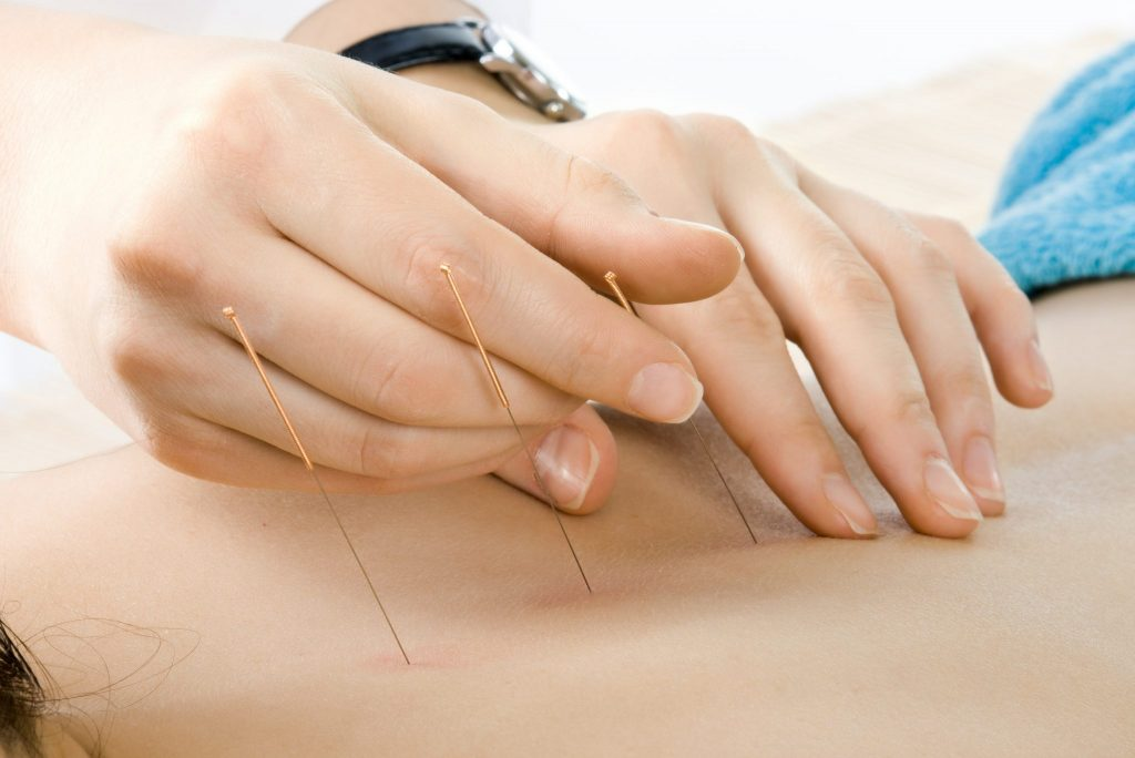 Acupuncture needles from Lierre.ca Canada - Black Friday Deals from Lierre.ca