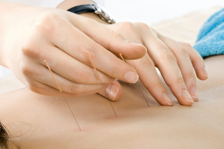 L'acupuncture – Black Friday avec Lierre.ca